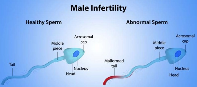 Information about the causes of male infertility